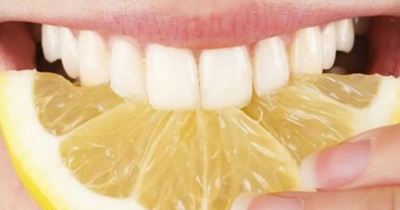 citron-dents