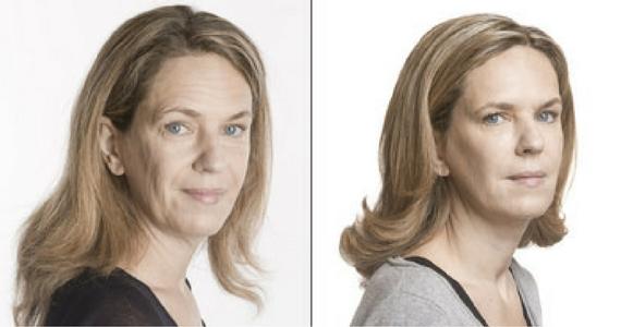 Win a Facial Rejuvenation Treatment & Makeover