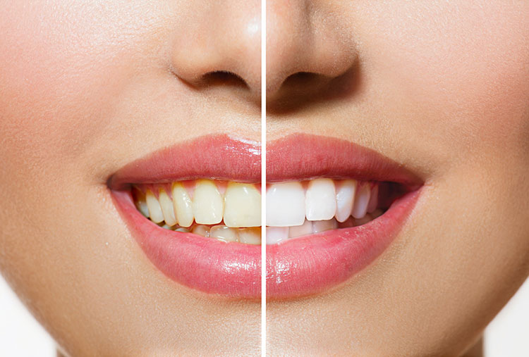 Teeth Whitening Comparison