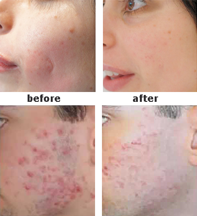 Acne Scar Treatment, Refitol acne scar cream