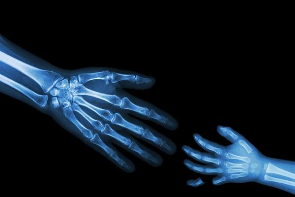 finger crush injury
