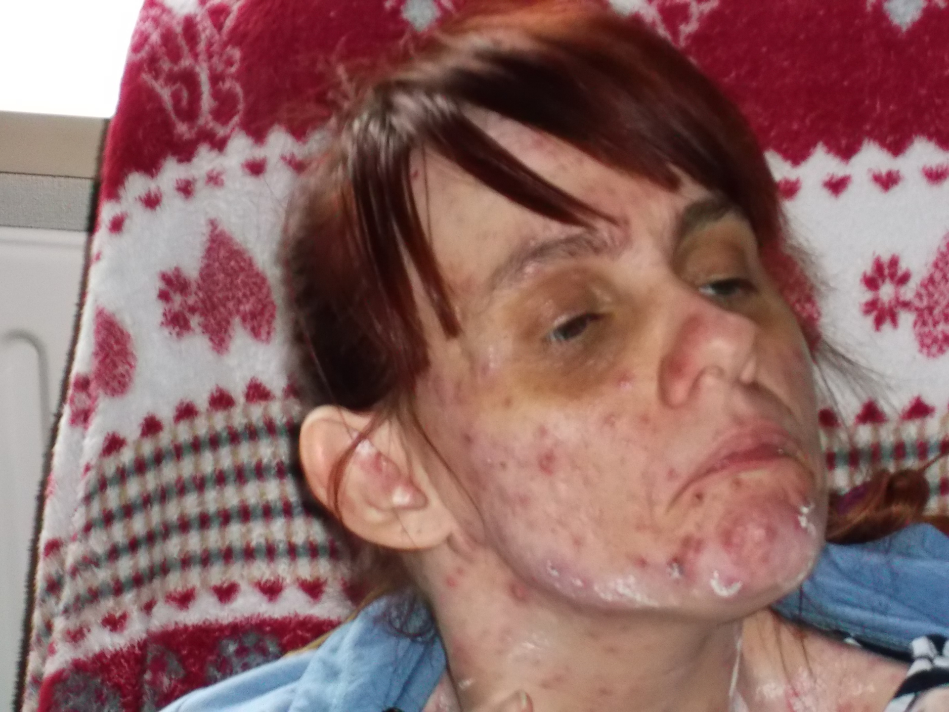 A photograph of a person with chicken pox