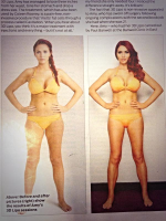 amy childs 3d lipo