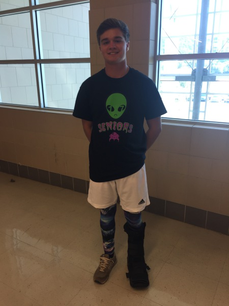 Tyler Blum is going to be watching the football games from the sidelines until his foot gets healed.