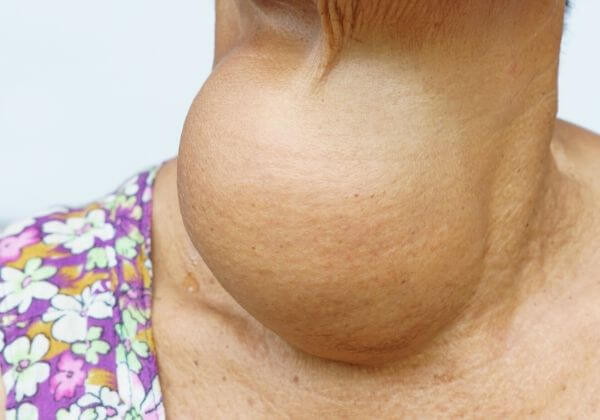 Hyperthyroidism: Symptoms, Diagnosis, and Treatment