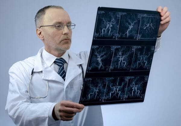 What Is Arrhythmia?