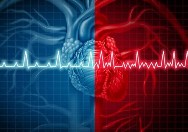 Atrial Fibrillation Symptoms - Cardiovascular Diseases - 1MD