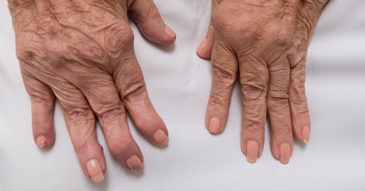 Causes and Natural Remedies for Rheumatoid Arthritis Linked to Poor Immune Health