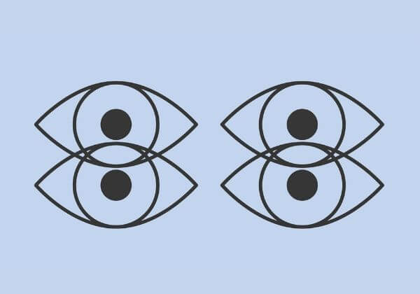 Double Vision (Diplopia): Symptoms, Associated Conditions, and Treatment