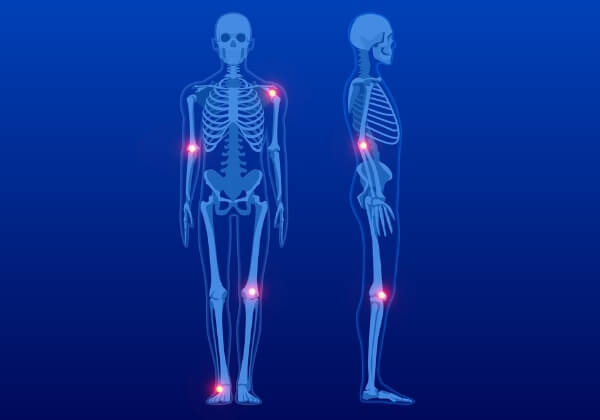 5 Common Bone Health Myths Debunked