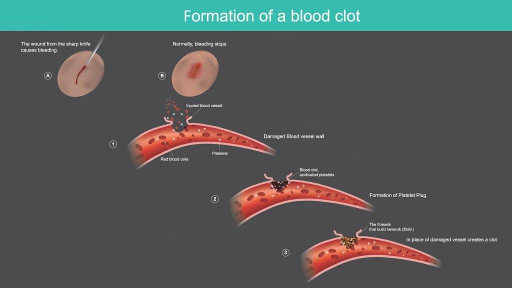 Blood Clot Curcumin Treatment: Is Turmeric a Natural Blood Thinner