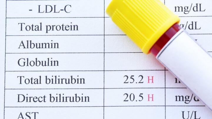 Liver test results
