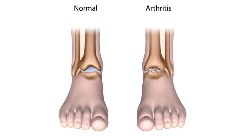 Arthritis May Cause Ankle Joint Stiffness