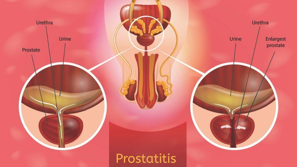 Prostatitis balanit prosztata izgatása