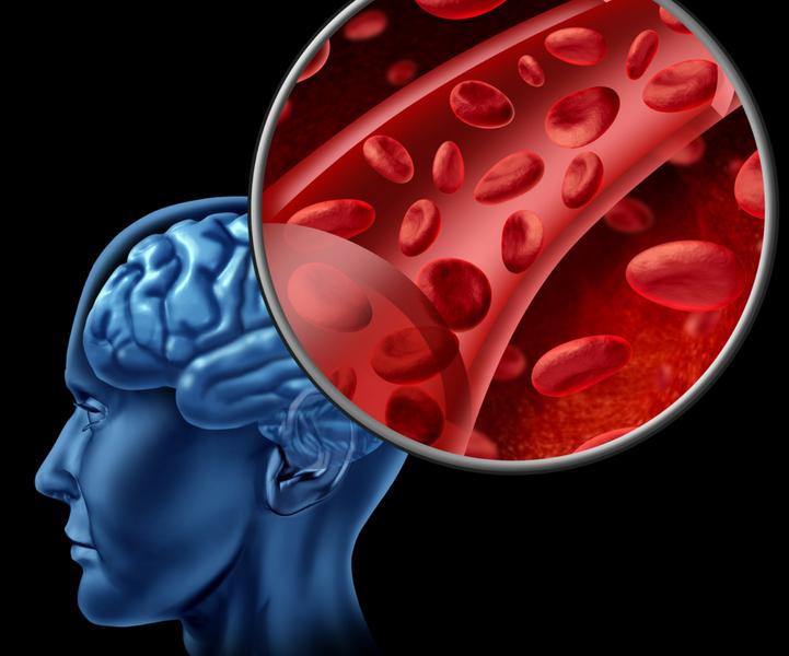 How to Spot Lyme Disease Symptoms, Its Brain Fog Effects, &