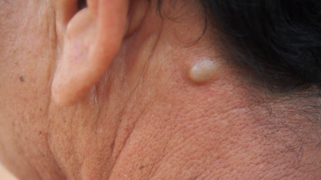Sebaceous Cyst Symptoms