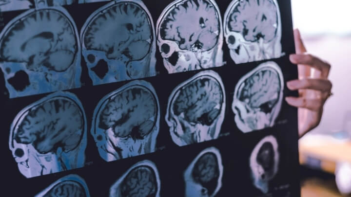 Doctor looking at MRI scans of human brain
