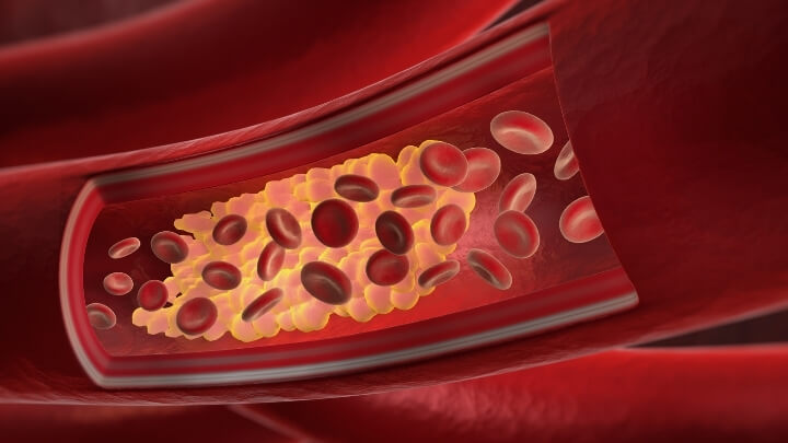 Illustration of cholesterol build up in a vein