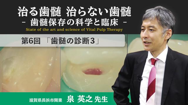 治る歯髄 治らない歯髄 - 歯髄保存の科学と臨床 - 第6回 「歯髄の診断3」