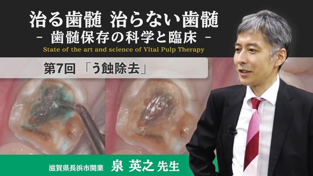治る歯髄 治らない歯髄 - 歯髄保存の科学と臨床 - 第7回 「う蝕除去」