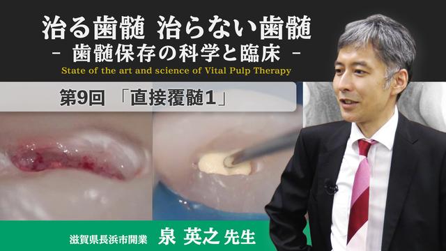 治る歯髄 治らない歯髄 - 歯髄保存の科学と臨床 - 第9回 「直接覆髄1」