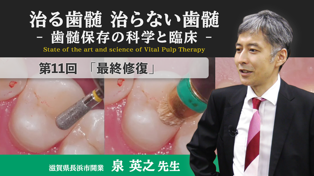 治る歯髄 治らない歯髄 - 歯髄保存の科学と臨床 - 第11回 「最終修復」