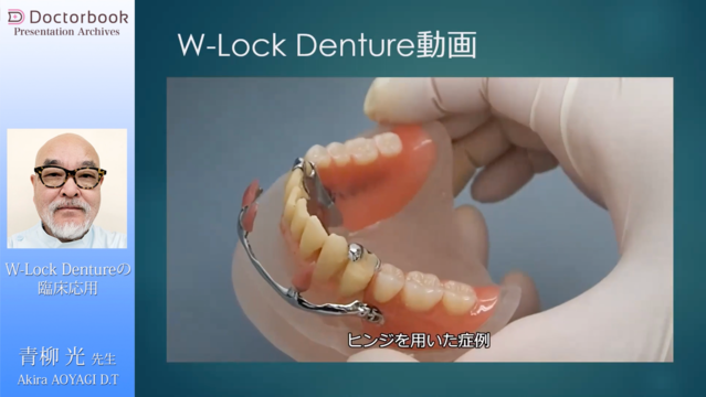 W-Lock Dentureの臨床応用
