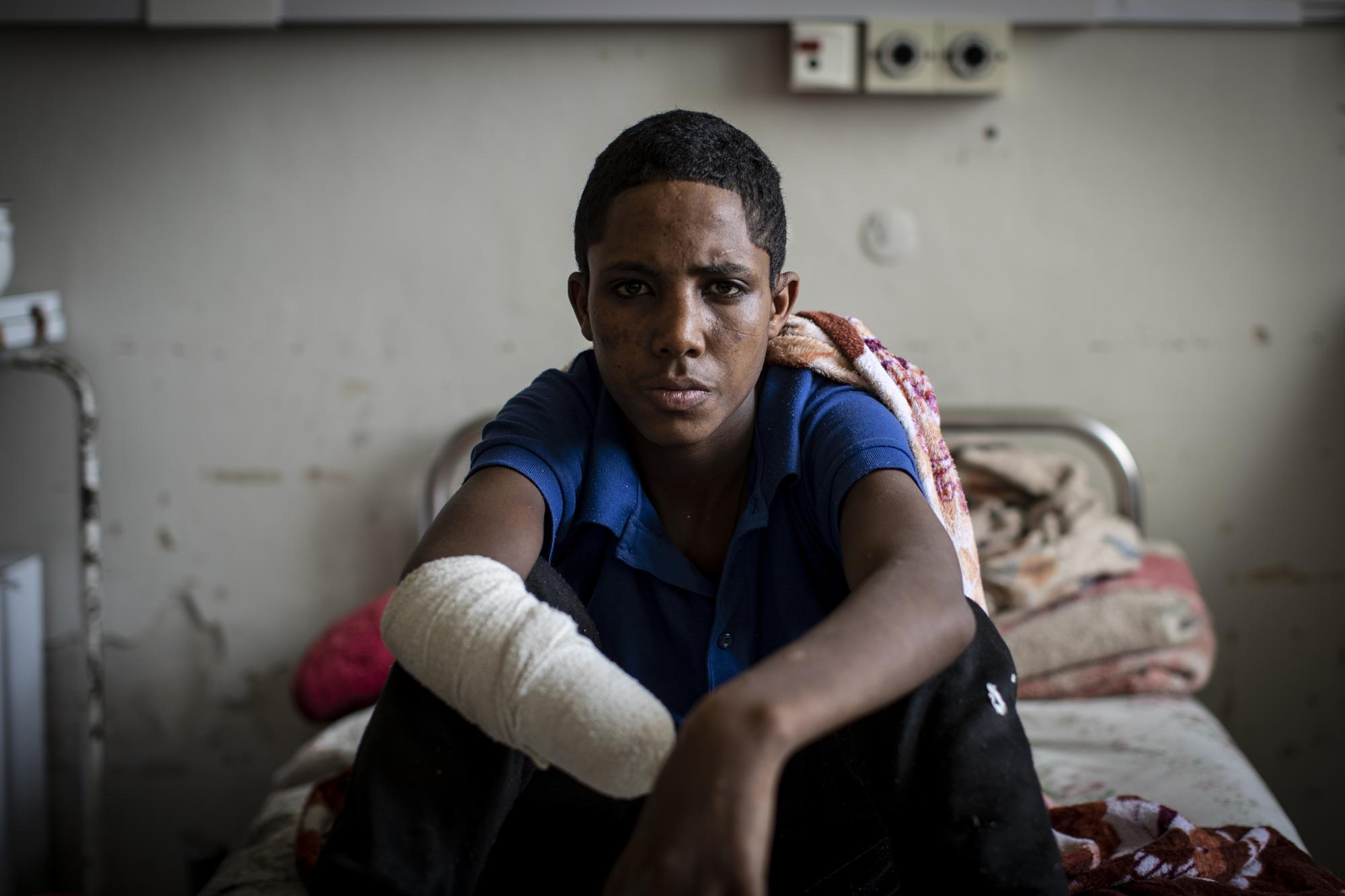 """Haftom Gebretsadik, a 17-year-old from Freweini, Ethiopia, near Hawzen, who had his right hand amputated and lost fingers on his left after an artillery round struck his home in March, sits on his bed at the Ayder Referral Hospital in Mekele, in the Tigray region of northern Ethiopia, on Thursday, May 6, 2021. """"I am very worried,"""" he said. """"How can I work?"""" (AP Photo/Ben Curtis)"""