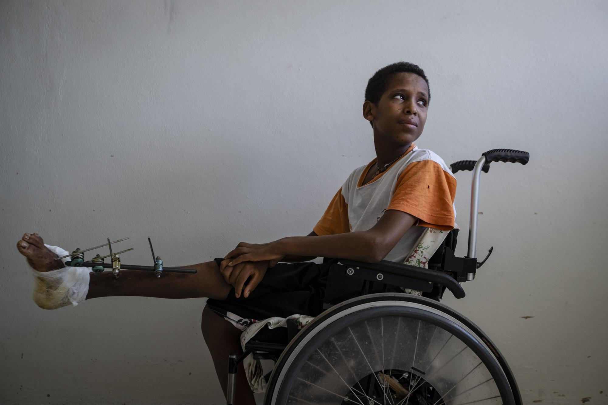 Desalegn Gebreselassie, 15, sits in his wheelchair as he recovers at the Ayder Referral Hospital in Mekele, in the Tigray region of northern Ethiopia, on Thursday, May 6, 2021. The teenager's foot was injured when a grenade exploded in his town of Edaga Hamus. (AP Photo/Ben Curtis)