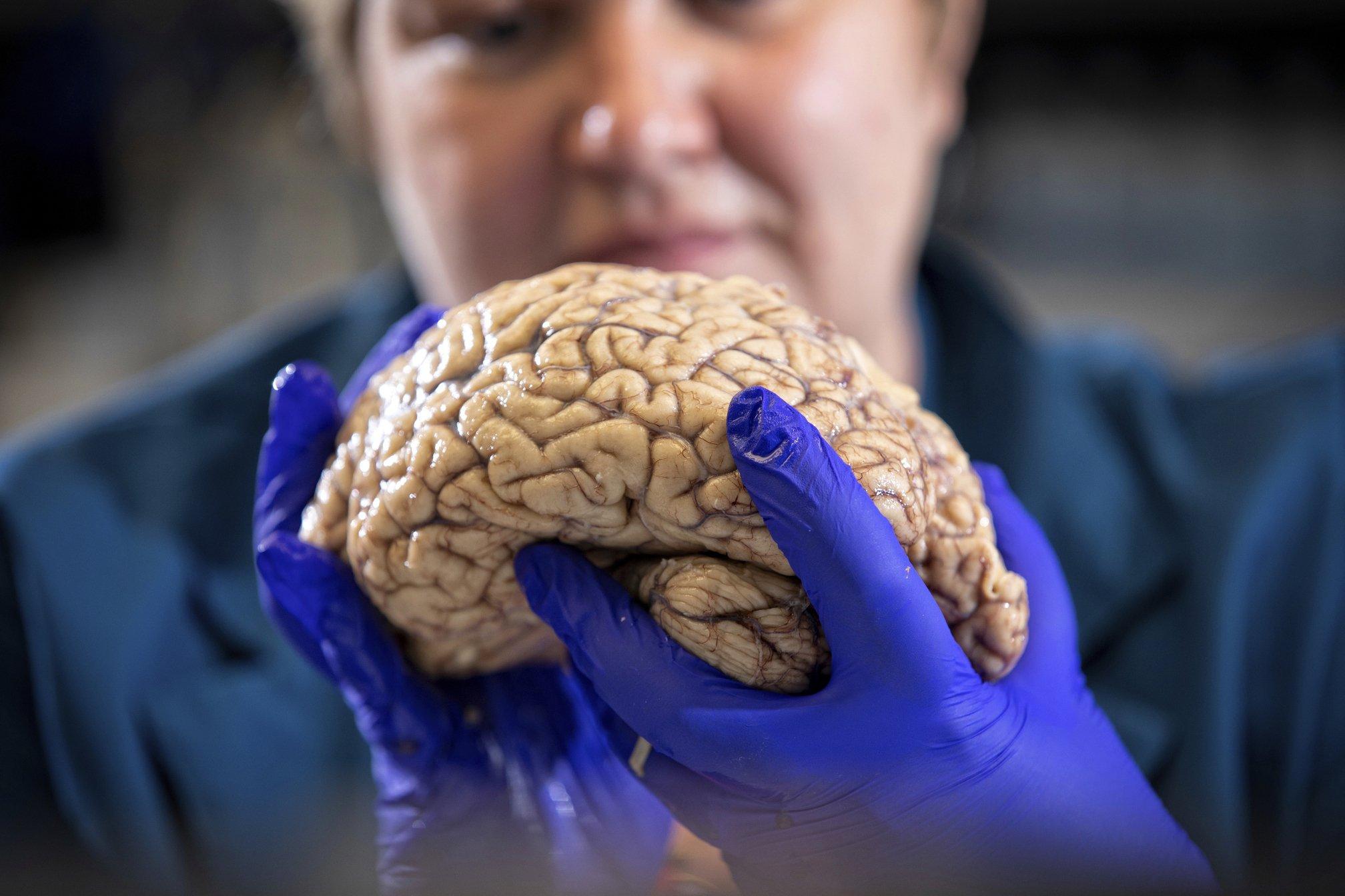 Alzheimer's Disease - Cover