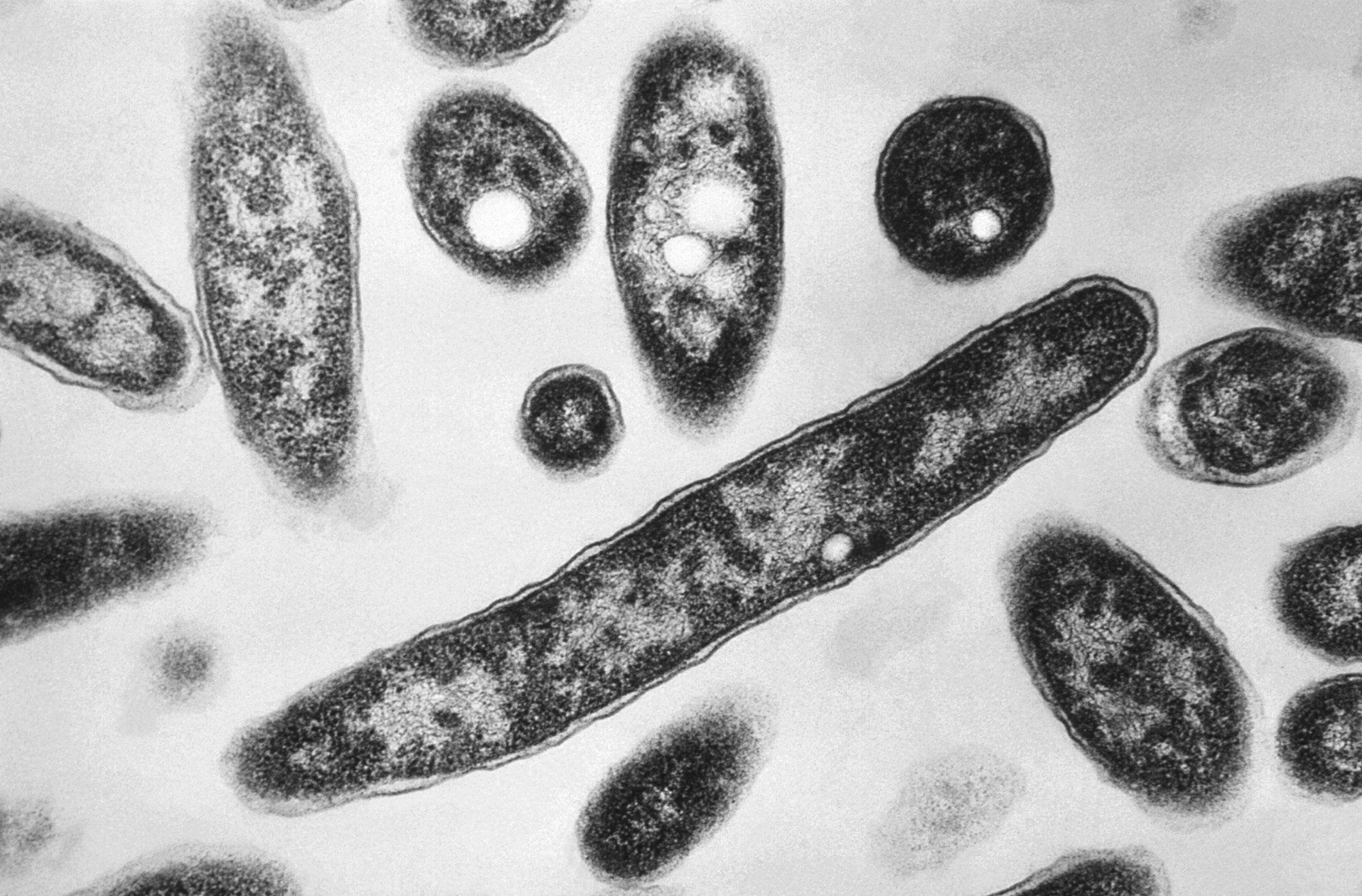 Experts call for steps to stem increases in Legionnaires'