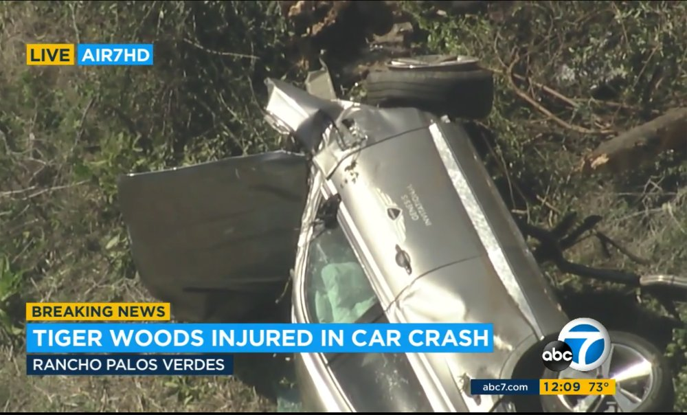 Tiger Woods undergoing surgery for leg injuries after California car crash
