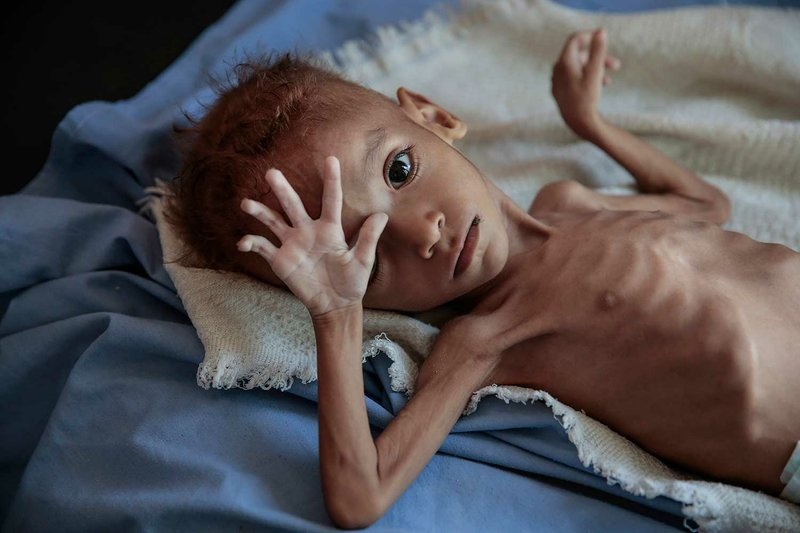 In this Oct. 1, 2018, photo, a severely malnourished boy rests on a hospital bed at the Aslam Health Center, Hajjah, Yemen. Malnutrition, cholera, and other epidemic diseases like diphtheria ravaged through the displaced and the impoverished communities. The fighting in Hodeida, the Red Sea port seen as the lifeline of northern Yemen where 70 percent of the population lives, threaten to worsen the world's largest humanitarian crisis. (AP Photo/Hani Mohammed)