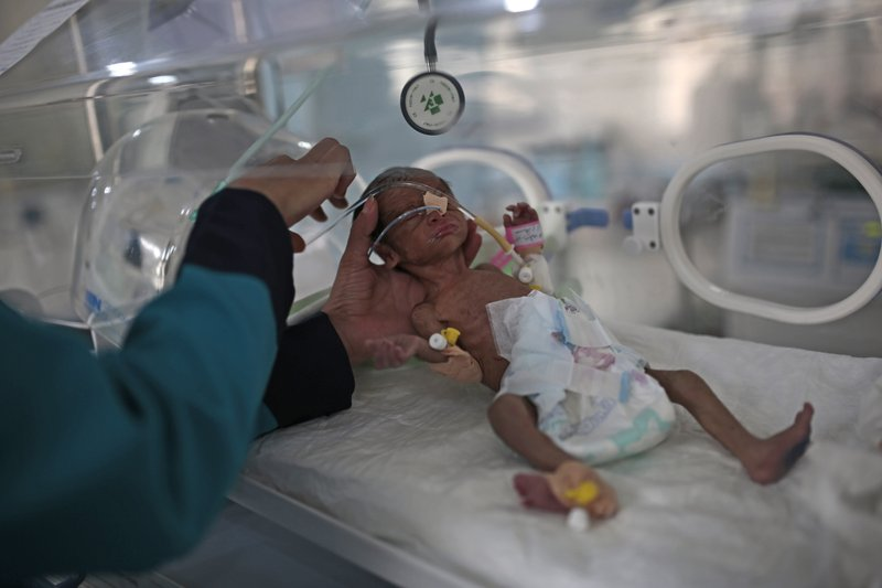 More than 2 million Yemeni children to face acute malnutrition in 2021