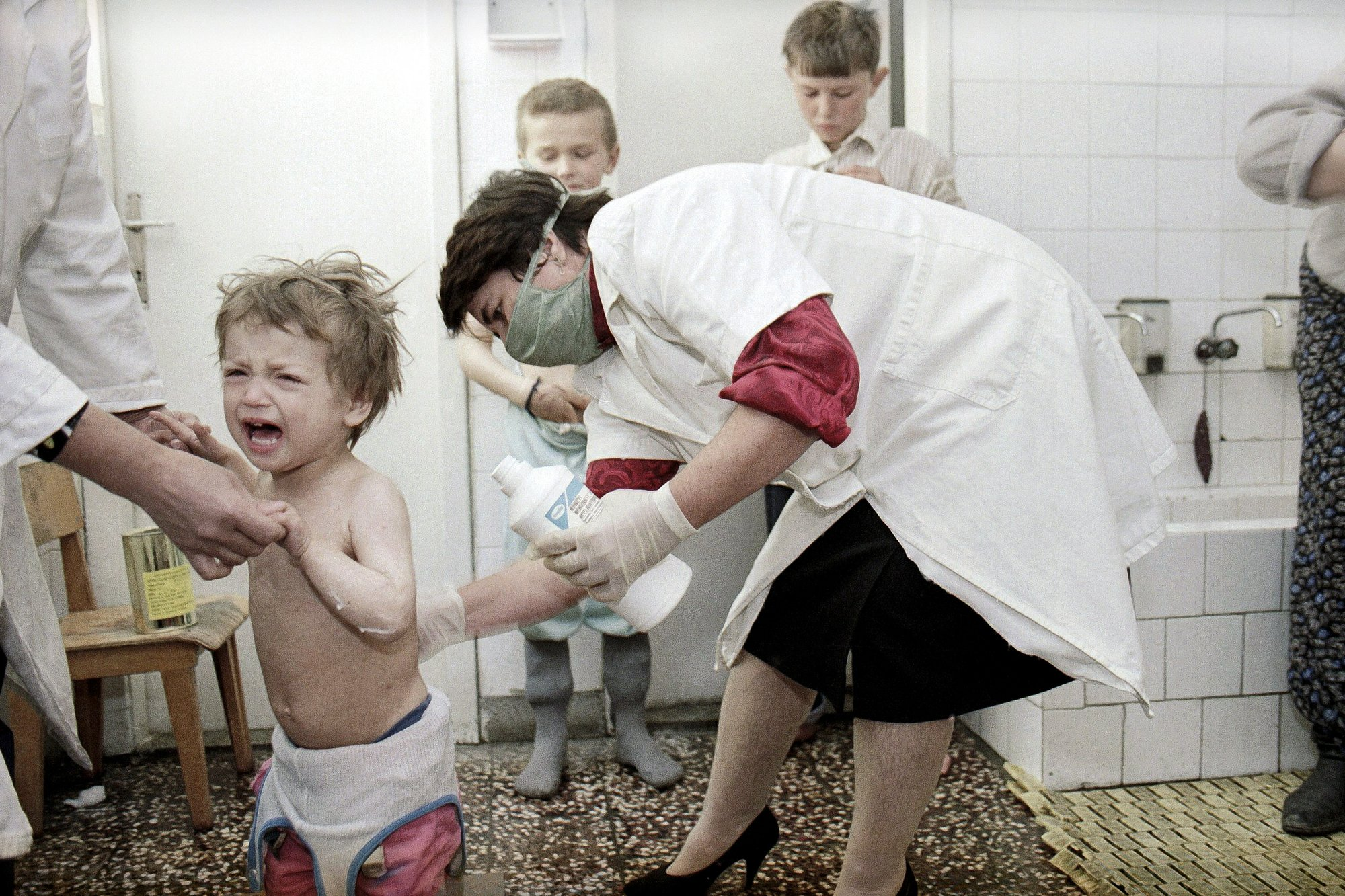 FILE- In this March 23, 1993, file picture a nurse treats a child refugee from Srebrenica with ointment against measles at the refugee camp in Lukavac, Bosnia.  Survivors of the genocide in the eastern Bosnian town of Srebrenica, mainly women, will on Saturday July 11, 2020, commemorate the 25th anniversary of the slaughter of their fathers and brothers, husbands and sons.  At least 8,000 mostly Muslim men and boys were chased through woods in and around Srebrenica by Serb troops in what is considered the worst carnage of civilians in Europe since World War II. The slaughter was also the only atrocity of the brutal war that has been confirmed an act of genocide. (AP Photo/Michel Euler, File)