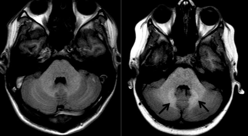 Gadolinium Deposition in the Brain Not Dose Dependent According to Study from Children's Hospital Los Angeles
