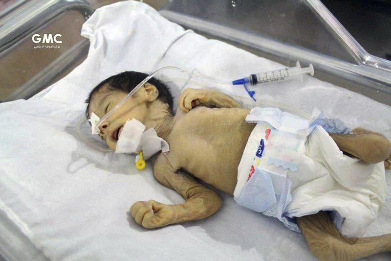 UN: Worst malnutrition since war is in besieged Syria suburb