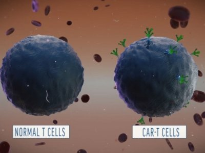 A Look at How CAR-T Cell Therapy Works