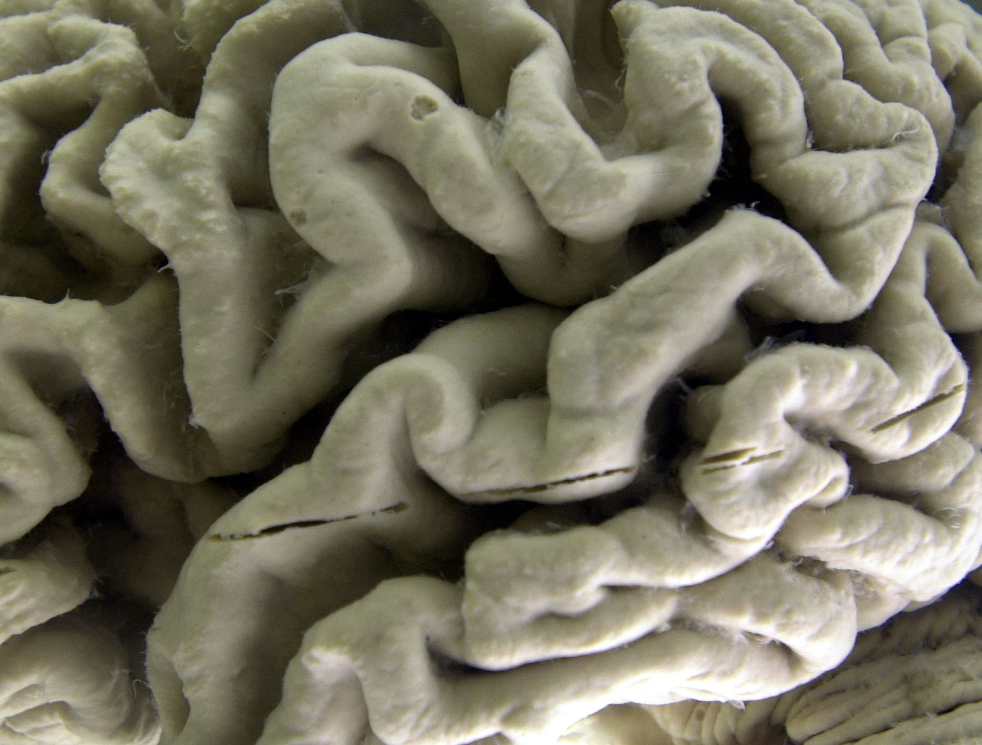 Hints that lifestyle changes might guard against dementia