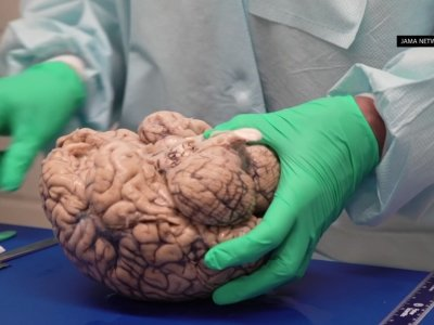 Study: CTE Affects Football Players At All Levels