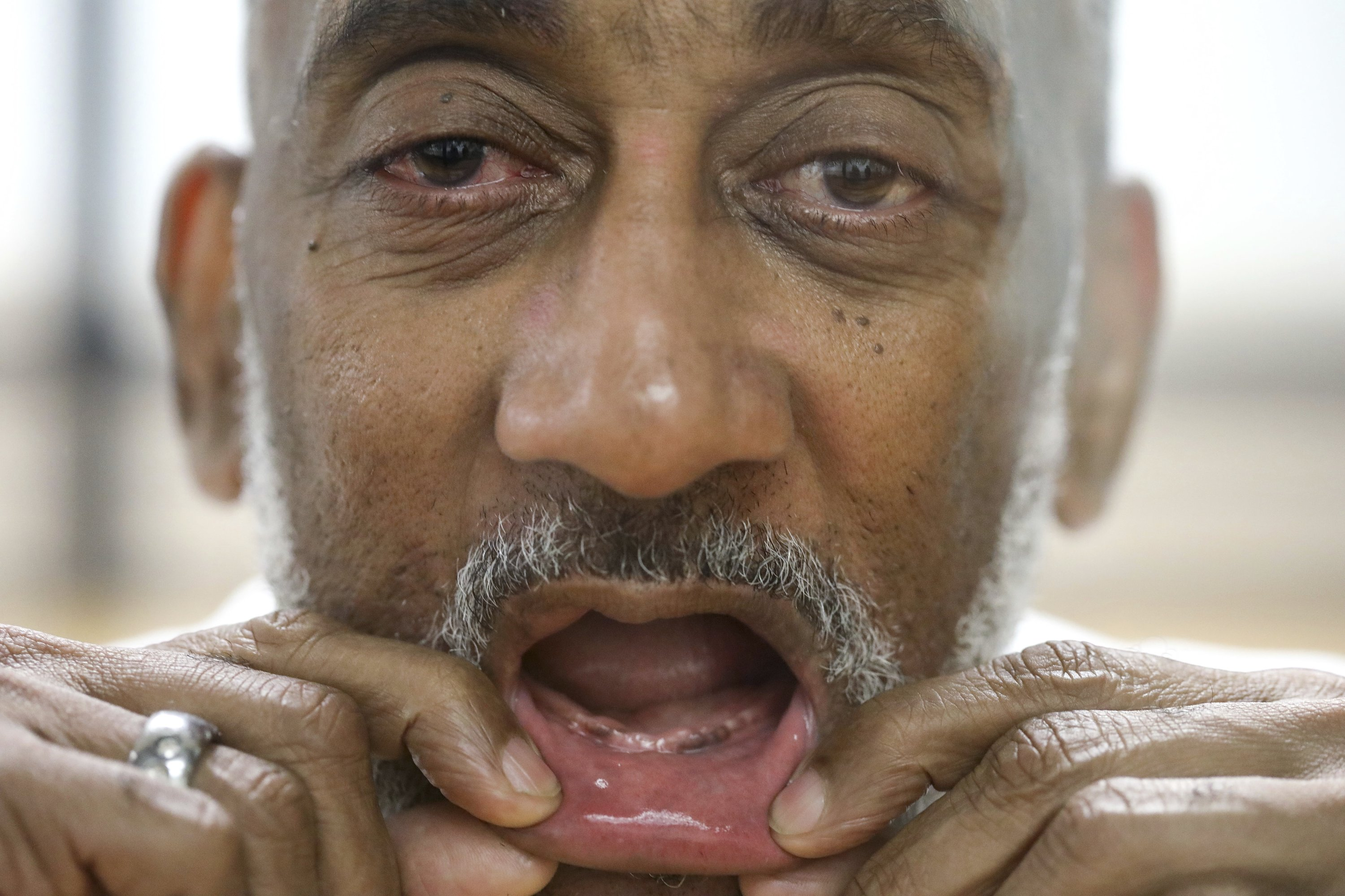 Texas prisons often deny dentures to inmates with no teeth