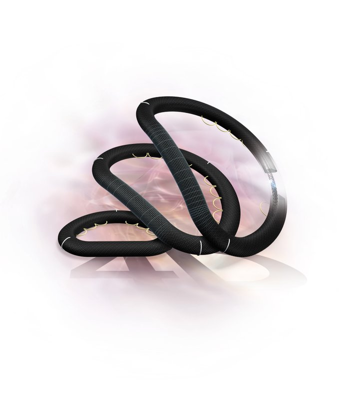 LivaNova Receives FDA Clearance and Completes First Implant for its MEMO 4D Semi-rigid Mitral Annuloplasty Ring