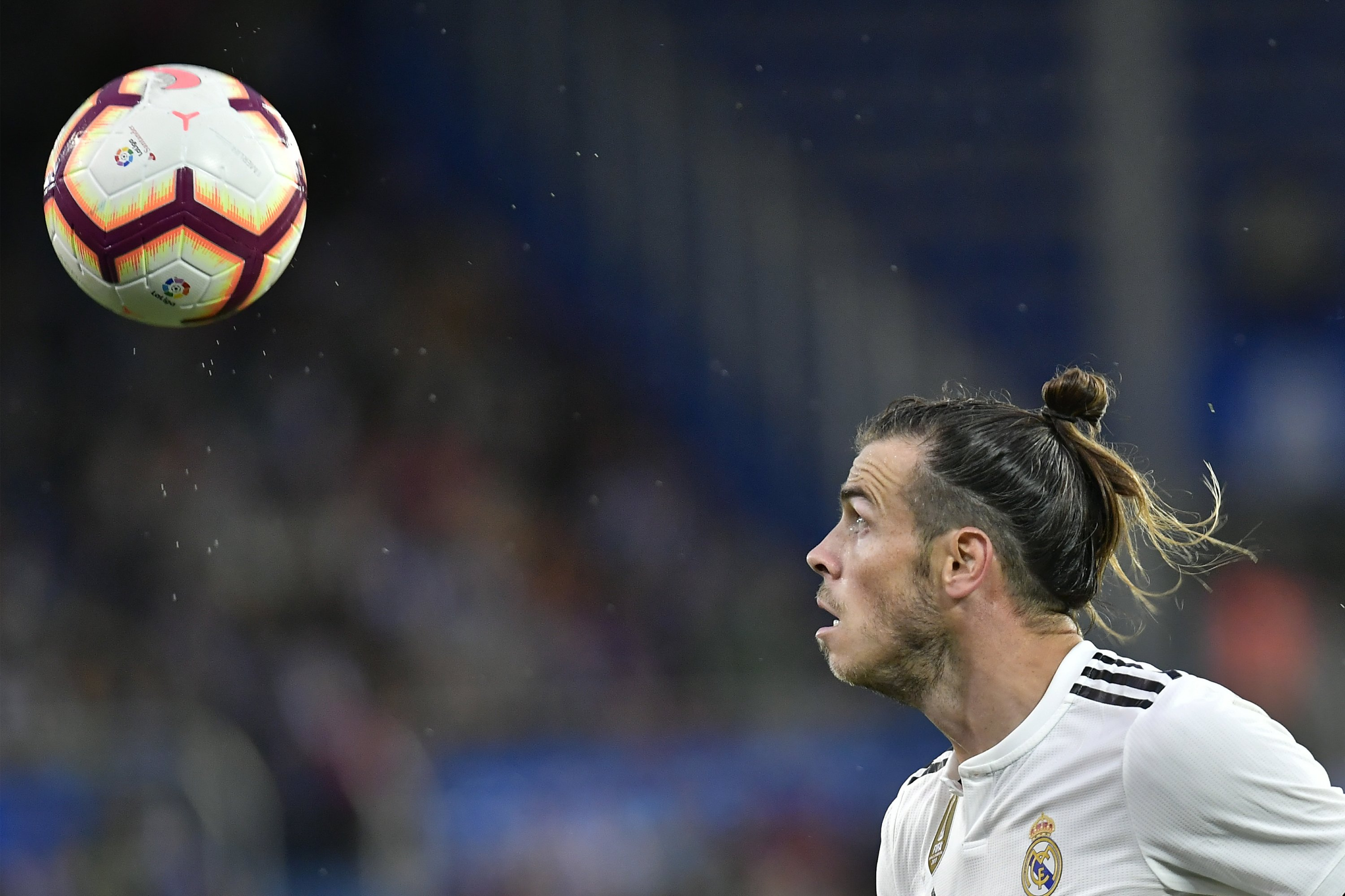 Bale, Benzema join Real Madrid's list of injured players