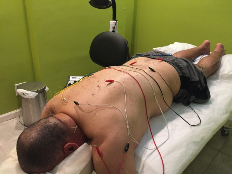 Patient enjoying acupuncture treatment