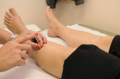 acupuncture-therapy-physical-therapy-treatment