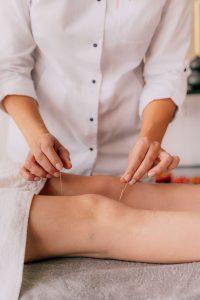 knee pain acupuncture
