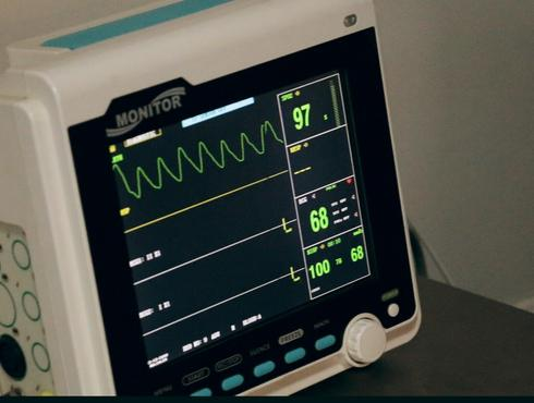 7 Facts About EKG Techs You Didn't Know