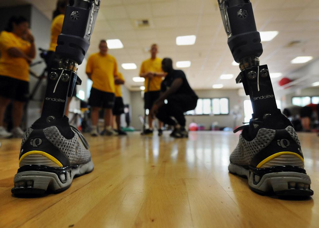orthotists prosthetists career job salary opportunities