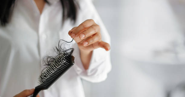 hair-loss-in-women-due-to-hormonal-imbalance