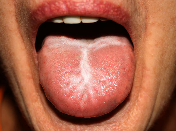 candida-albicans-on-the-tongue